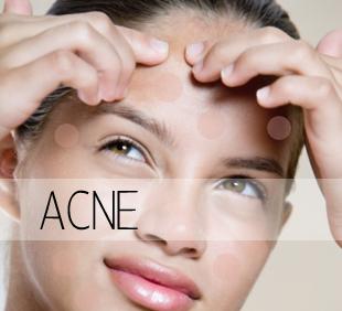 adult-acne-face-free-amateur-panty-pics